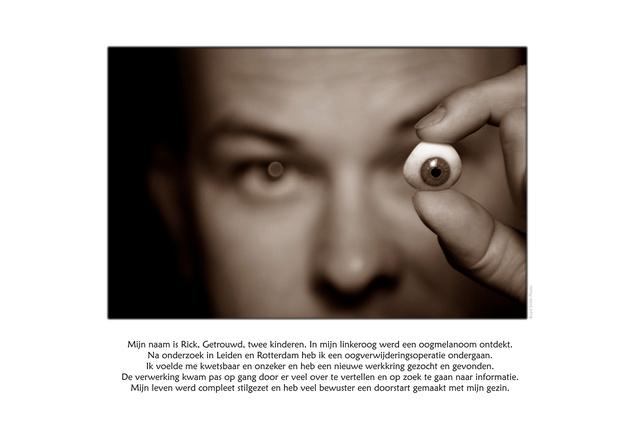 Rick Melanoom.jpg