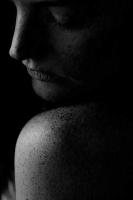 150304_Freckles-7361.jpg