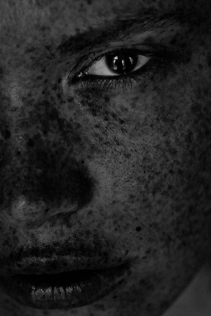 150304_Freckles-7524.jpg